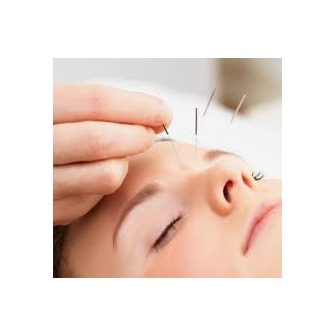 /acupuncture_55431.jpg